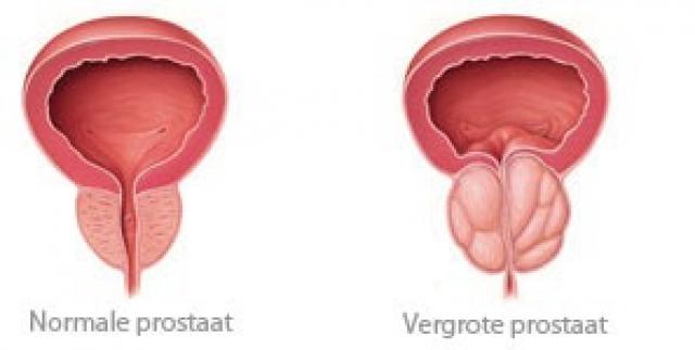Normale versus vergrote prostaat