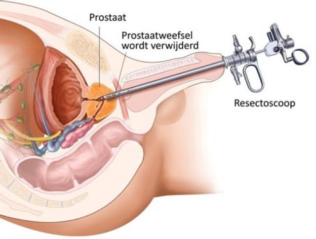Anatomische doorsnede TURP-ingreep