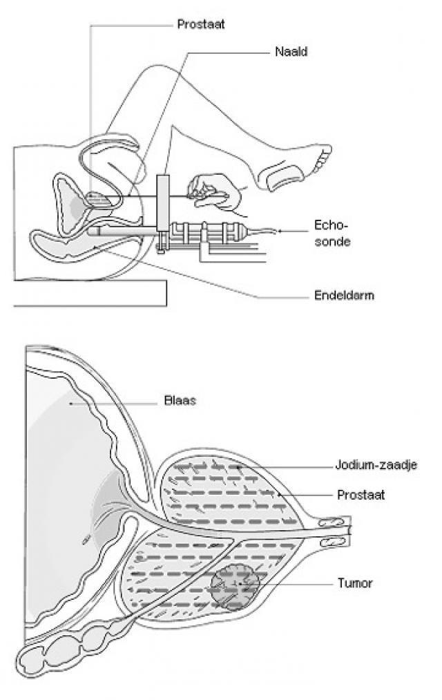 Inwendige bestraling d.m.v. plaatsing radioactief zaadje in de prostaat