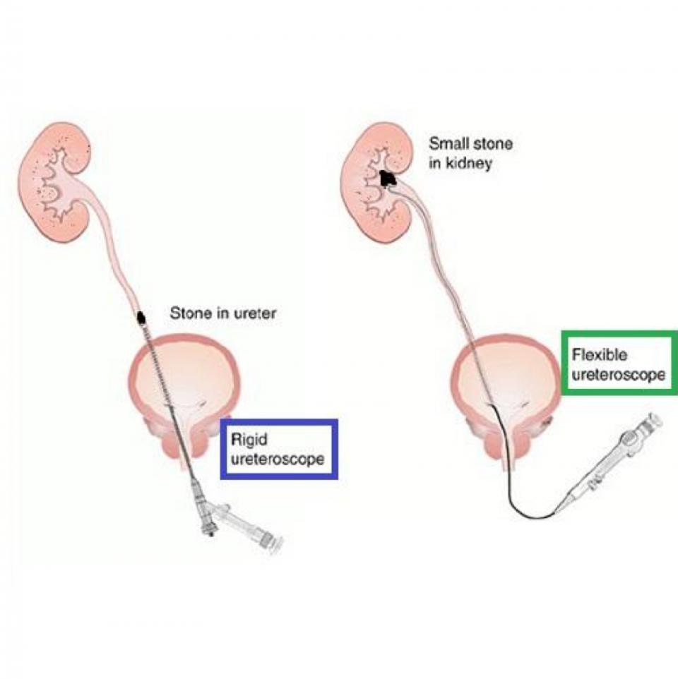 Rigide versus flexibele ureteroscopie