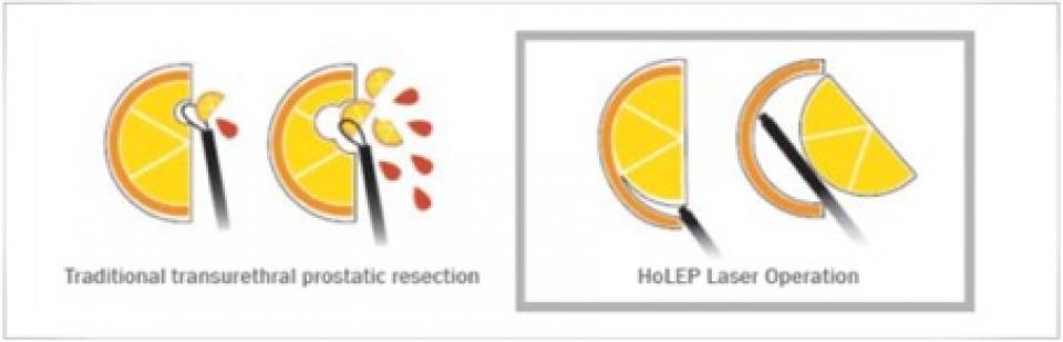 Transvesicale prostatectomie vs Holep